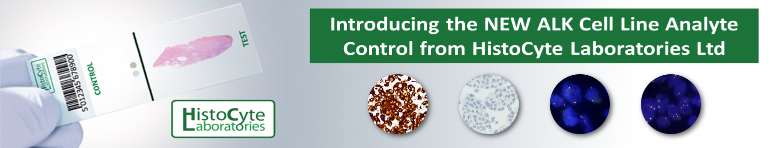 ALK-EML4 Control Material Introduction