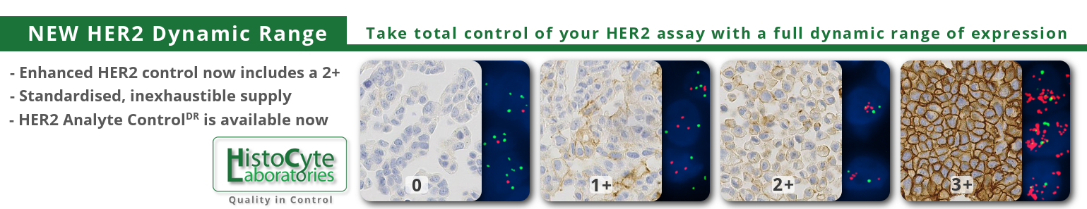 New HER2DR Control Material